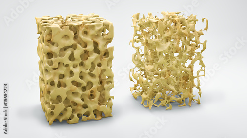 Fotografía  Bone structure 3d illustration, normal and with osteoporosis