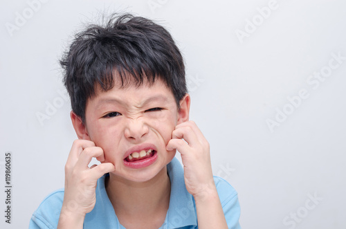 Photo  Young asian boy scratching his allergy face