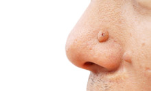 Mole On Face And Nose