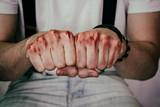 Puños de un hombre con sangre en los nudillos