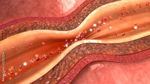 Artery Spasm Canvas Print