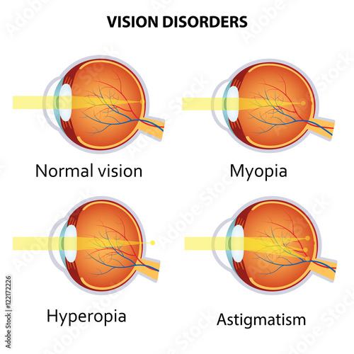 Fotografie, Obraz Common vision disorders.