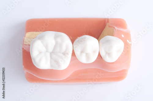 Fotografie, Obraz  Generic dental teeth model