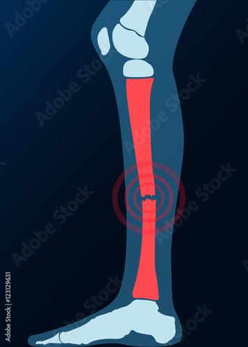Röntgenbild Bein Knochen gebrochen Grafik – kaufen Sie diese ...