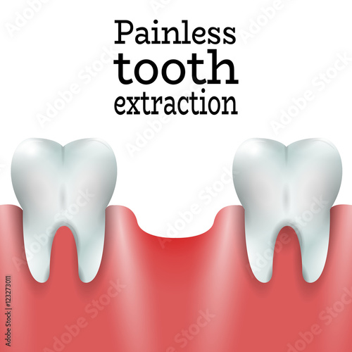 Teeth Family With Exctracted Tooth In Healthy Gum Dental Pain Free Tooth Extraction Surgery Dentistry Vector Illustration Medical Conception Tutorial For Tooth Clinic Oral Surgery For Dental Clinic Buy This Stock Vector And Explore