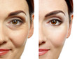 Leinwandbild Motiv Woman face before and after cosmetic procedure. Plastic surgery concept.