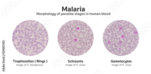 Photo  Microscopic examination of blood films from malaria infected pat