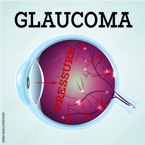 Fotografía  Human Glaucoma disease anatomy structure