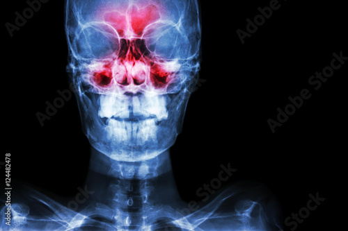 Sinusitis. film x-ray skull AP ( anterior - posterior ) show ...