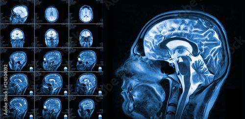 Fotografie, Obraz  Magnetic resonance imaging of the brain