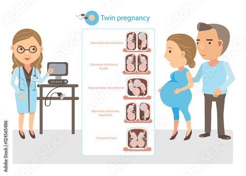 Valokuva  Twin Pregnancy doctor explained twin pregnancy