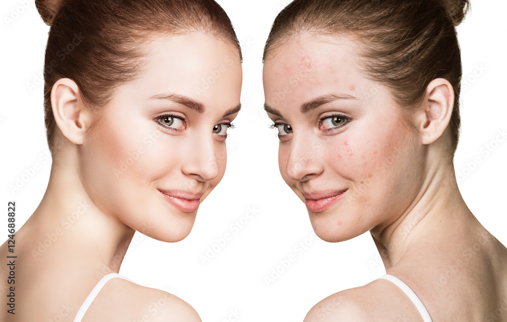 Fototapeta Girl with acne before and after treatment
