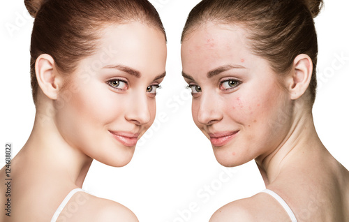 Photo Girl with acne before and after treatment