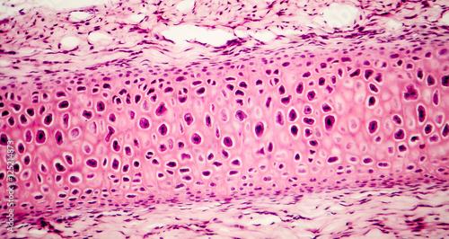 Fotografie, Obraz Compact bone micrograph