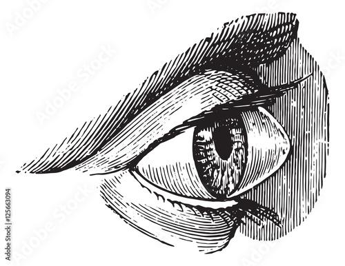 Fotografie, Obraz  Staphyloma, keratoconus or pellucid, vintage engraving.
