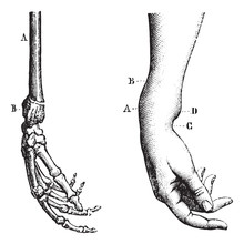 Fracture Of The Lower Extremit...