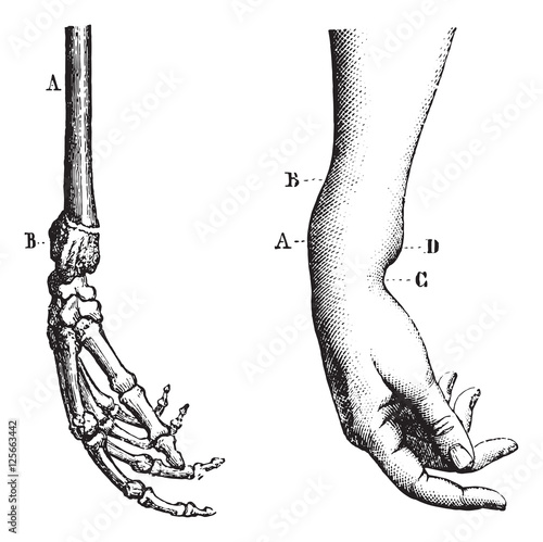 Fotografia, Obraz  Fracture of the lower extremity of the radius, vintage engraving