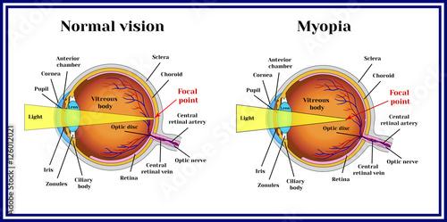 Fotografía  Refractive errors eyeball. Myopia.