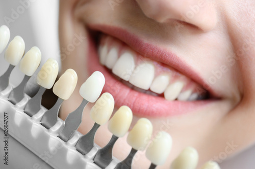 Young woman choosing color of teeth at dentist, closeup