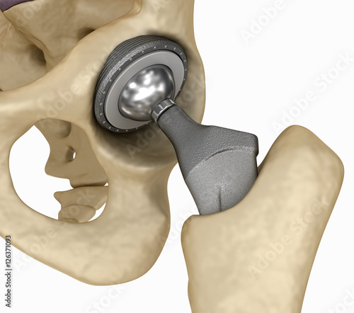 Obraz Hip replacement implant installed in the pelvis bone. Medically accurate 3D illustration - fototapety do salonu