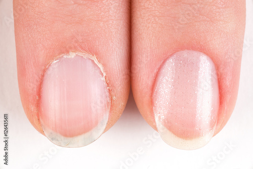 Fotografie, Obraz  Comparison of the beautiful and the ugly manicure