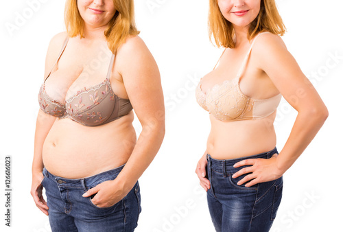 Fotografía  Woman before and after weight loss