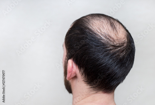 Photo male head with thinning hair or alopecia