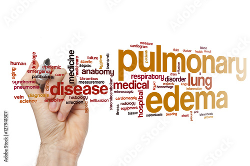 Pulmonary edema word cloud - Buy this stock photo and