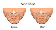 Alopecia Areata On The Male Chin