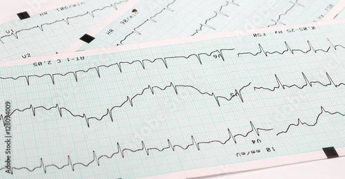 Photo EKG arrhythmia absoluta, printout background