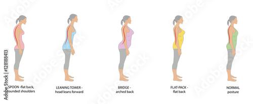 Fotografía  types of posture women. vector illustration.