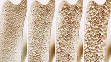 Osteoporosis 4 Stages - 3d Ren...