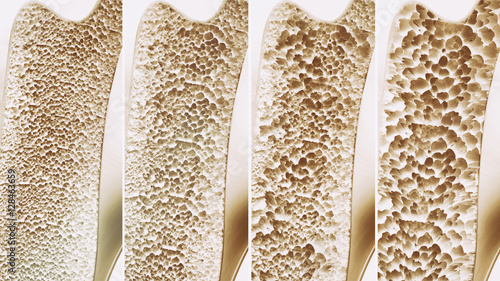 Osteoporosis 4 stages - 3d rendering Canvas Print