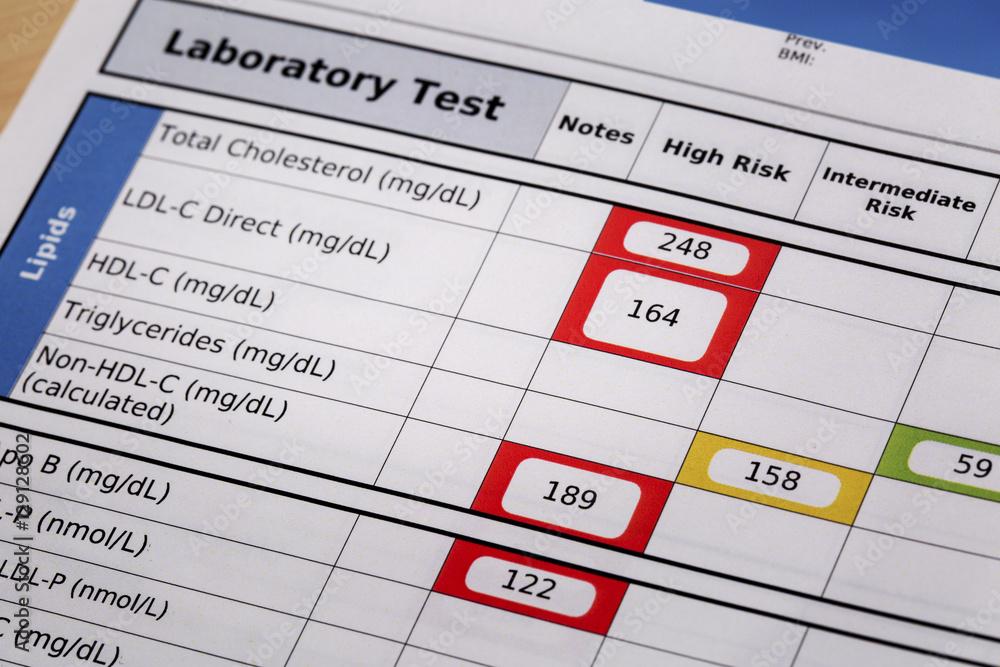 Fototapety, obrazy: high risk cholesterol test results