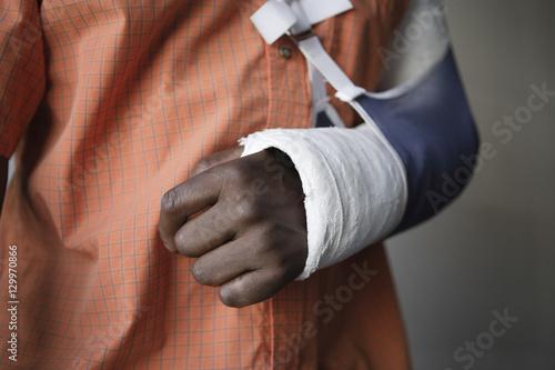 Fotografía  Closeup midsection of a man with broken arm in cast