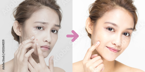 Fotografía  acne care of young woman before after