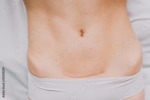 Photo  Closeup of woman belly with a scar from a cesarean section