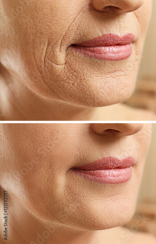 Fotografía  Mature woman face before and after cosmetic procedure