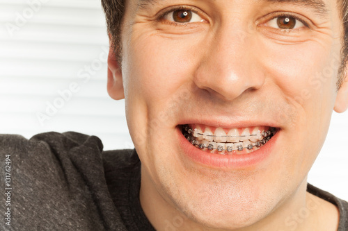 Fotografia  Young man with dental braces on his teeth