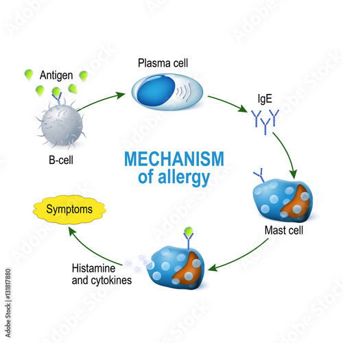 Fotografía  Mechanism of allergy. Mast cells and allergic reaction