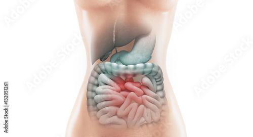 Anatomia intestino malato con tumore o malattia Wallpaper Mural