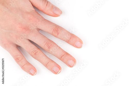 Fotografie, Obraz  Female hand with manicure ugly