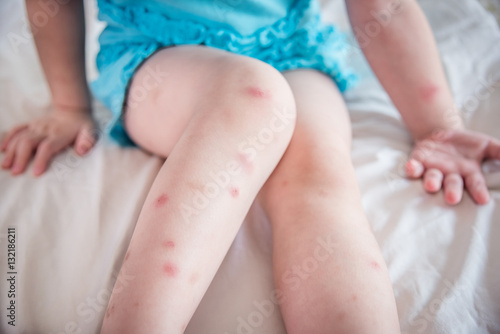 Fotomural  Mosquito bites sore and scar on child legs