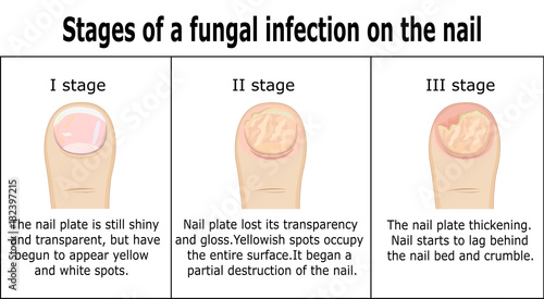 Fotografie, Obraz  Three stages of development of fungal infection on nail of the toe