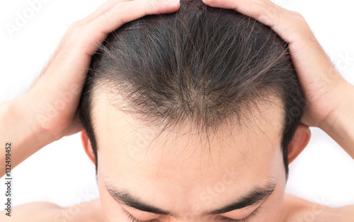 Fotografía  Young man worry hair loss problem for health care shampoo and be