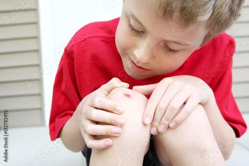 Fotografie, Obraz  Boy with a scraped knee