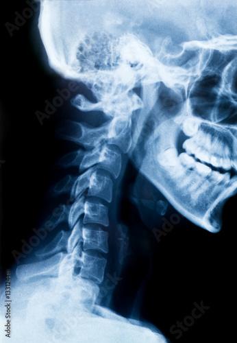 Röntgen Bild - X-Ray Schädel und Halswirbelsäule – kaufen Sie diese ...