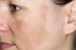canvas print picture - Junge Frau mit Pigmentflecken auf den Wangen