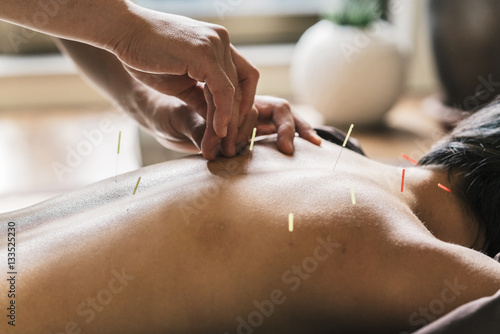 Therapist Giving acupuncture Treatment To a Japanese Woman Canvas Print