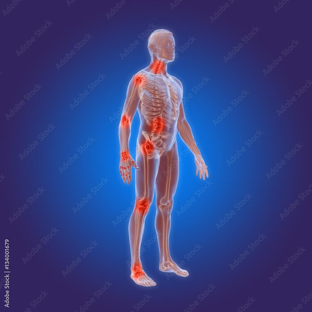 Types Of Osteoarthritis Rheumatoid Arthritis In The Human Body